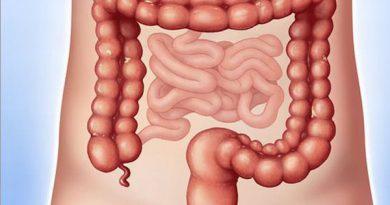 Nguyên nhân và cách điều trị bệnh viêm đại tràng co thắt